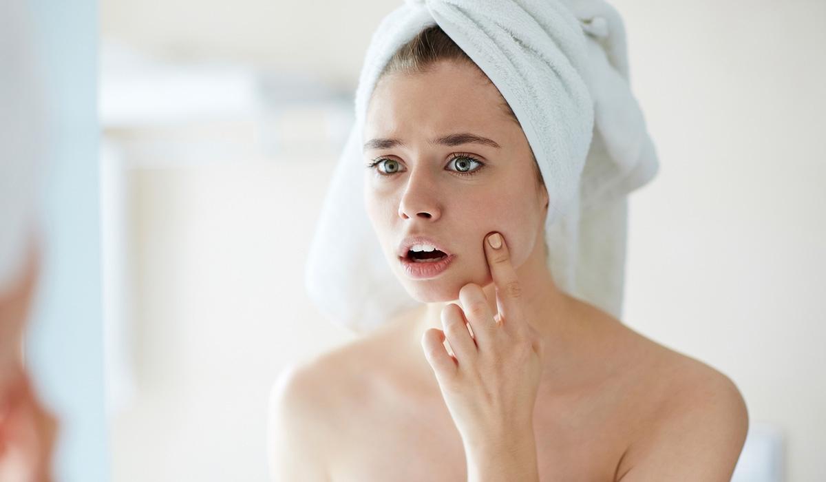 Cum se îngrijește tenul acneic în timpul verii? Caracteristici, cosmetice& îngrijire